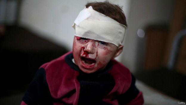 160821101855_syria_war_child2_640x360_getty