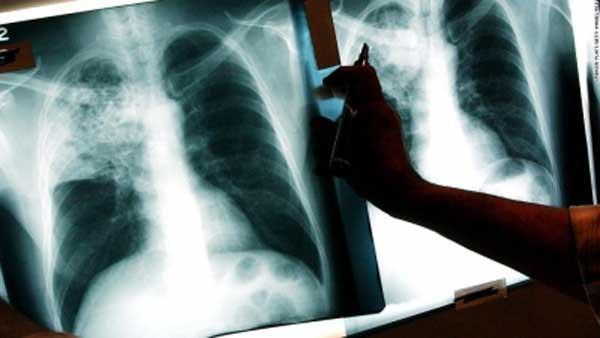 1521531058-tuberculosis